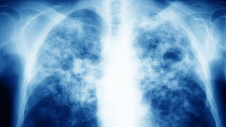 TB- X-ray
