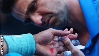 A trainer treats Rafael Nadal's hand