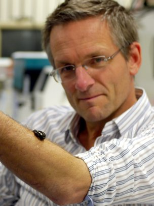 Michael Mosley with leech
