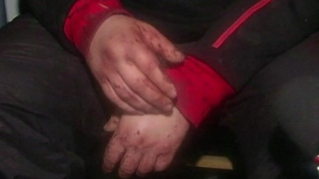 Bloodied hands of Dmytro Bulatov