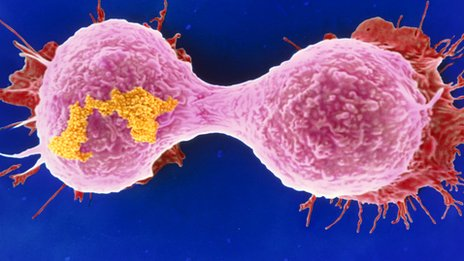 Dividing breast cancer cell