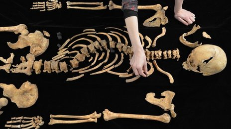 Richard's bones being examined at the University of Leicester