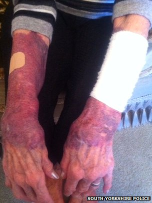 A photo of bruised arms
