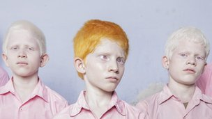 A picture of a group of blind albino boys in their boarding room at the Vivekananda Mission School for the Blind in West Bengal