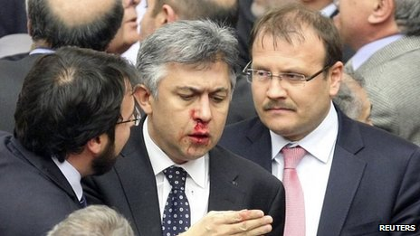 Opposition MP Ali Ihsan Kokturk pictured after his nose was broken