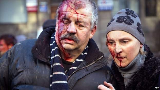 Injured protesters in Kiev. Photo: 18 February 2014