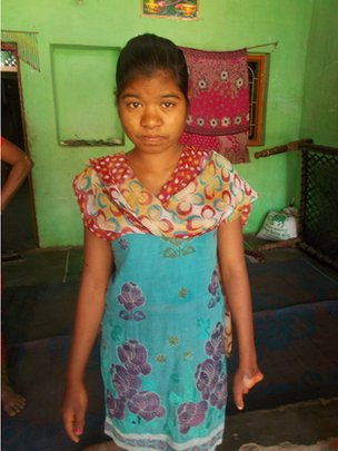 Sonal, aged 16, lost her hand in a cotton mill accident last year