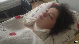 Olesya Zhukovska lies on her hospital bed in Kiev, Ukraine, on 21 February 2014.