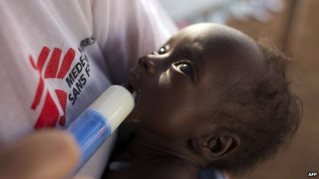 A MSF nurse cradles a malnourished six-week-old orphan in a camp for people displaced by ethnic violence in the South Sudanese capital Juba