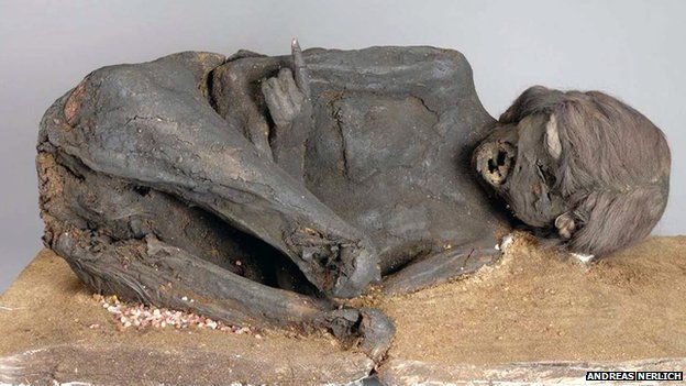 Frontal view of the mummy which reveals typical squatting position