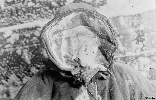 "An expedition member with an ""ice mask"""