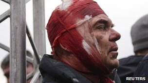 A wounded supporter of Ukraine's new government is seen after clashes with pro-Russian protesters in central Kharkiv