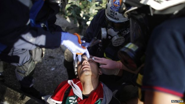 An anti-government lies injured during a rally in Caracas on 2 March, 2014