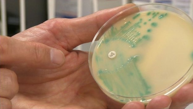 Warning over hospital superbug rise