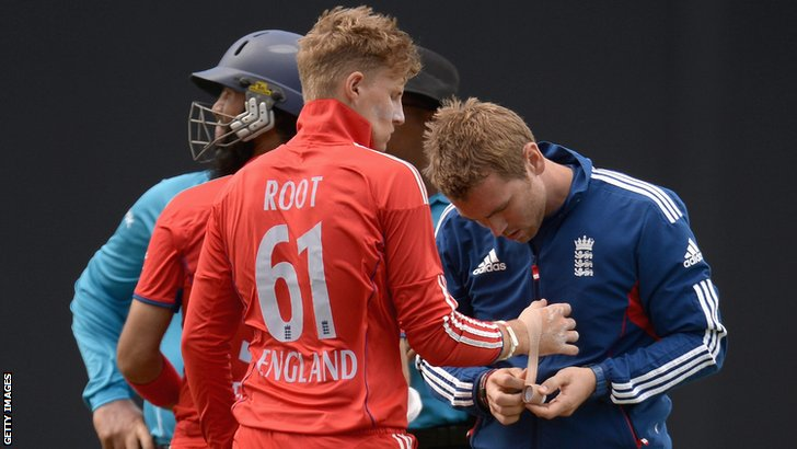 Joe Root has his hand bandaged