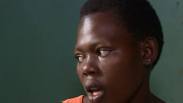 Sulaina Namubiru, fistula patient