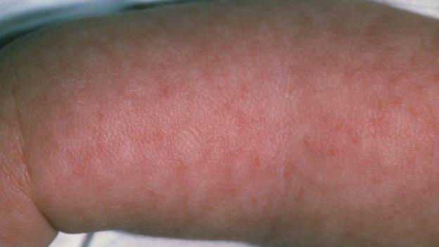 Meningitis rash