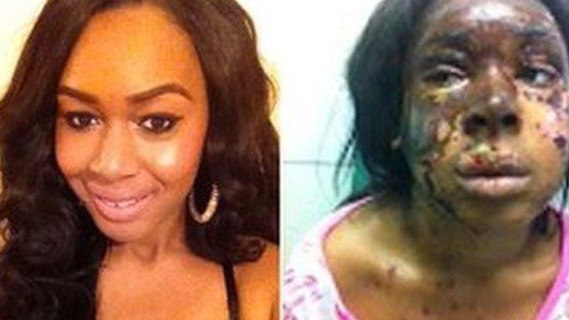 Naomi Oni before and after acid attack