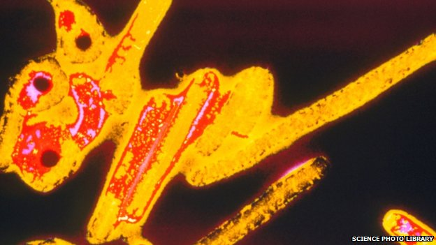 The Ebola virus seen through an electron microscope