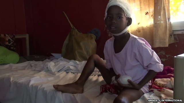 Injured child in hospital, pic from December 2013 courtesy of Amnesty International