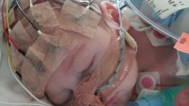 Evie in intensive care