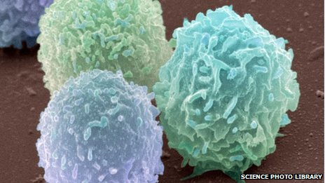 White blood cells, coloured scanning electron micrograph including one neutrophil (right)