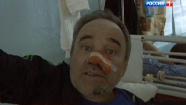 Screenshot of a news bulletin on Rossiya 1 with an activist in a hospital bed