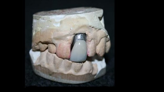 Dental mould and crown