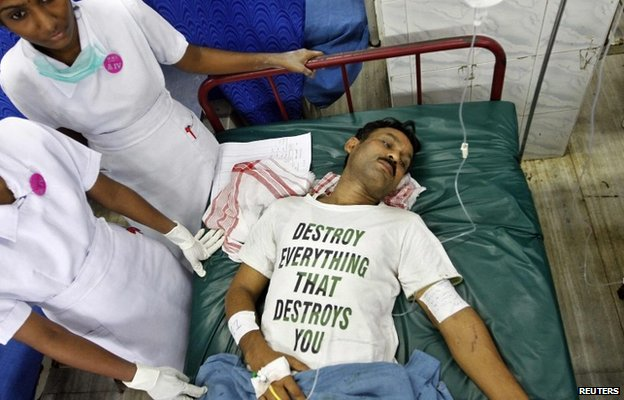 A victim, who was injured in an explosion that occurred in a passenger train, lies in a hospital in the southern Indian city of Chennai May 1, 2014.