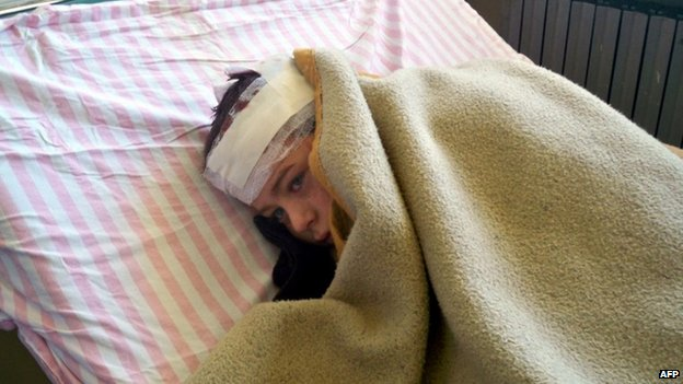 Handout picture released by Syrian state news agency Sana shows injured child in Hama (1 May)