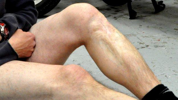 Aaron Moss's legs