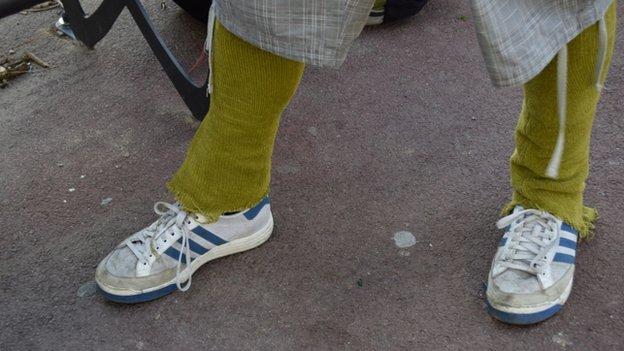 Hugo's leg warmers