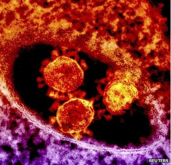 Particles of the Middle East respiratory syndrome (Mers) coronavirus