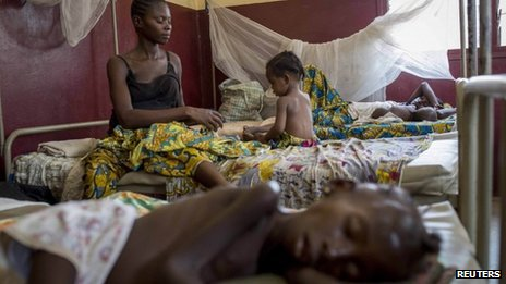 Children suffering from malnutrition, at a hospital in Bangui
