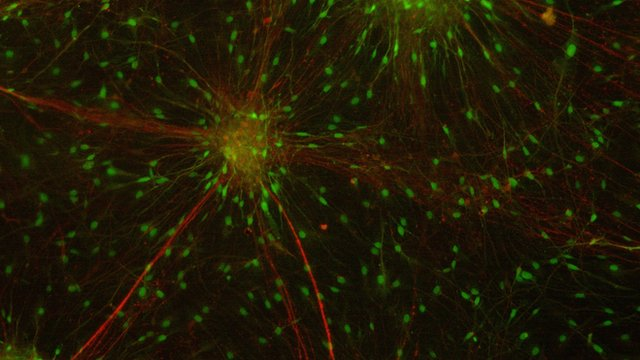 Brain cells grown from a person's skin cells