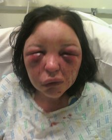Domestic abuse victim