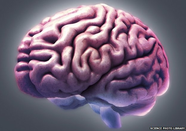 MRI scan of healthy brain