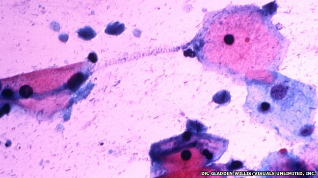 Prostate cancer 'linked to sex bug'
