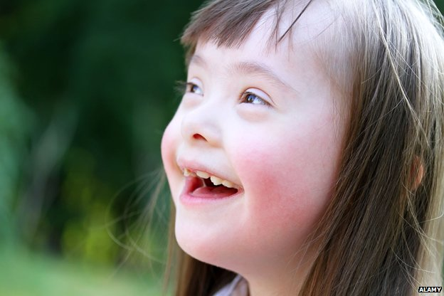 Girl with Downs' syndrome