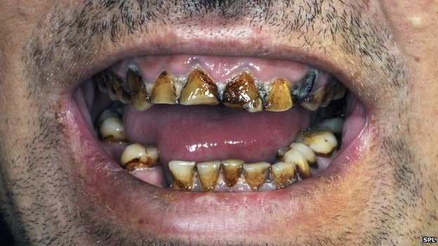 rotting teeth images - reverse search, Human Body