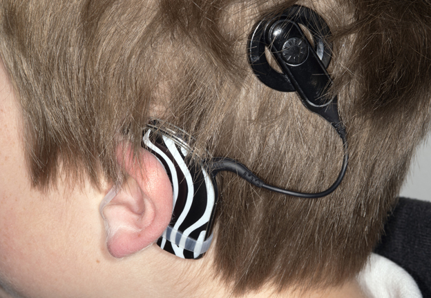 Hearing aid worn by an eight year old boy. The patterned device is the sound processor for a cochlear implant.