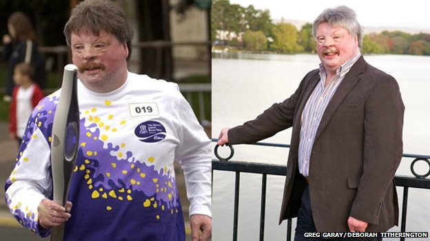Simon Weston, pictured in 2002 and nowadays