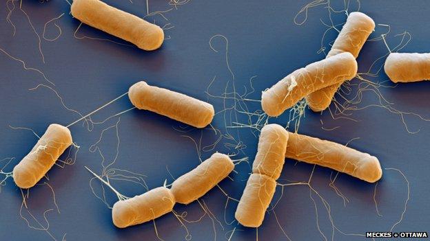 Bacillus cereus bacterium under a microscope