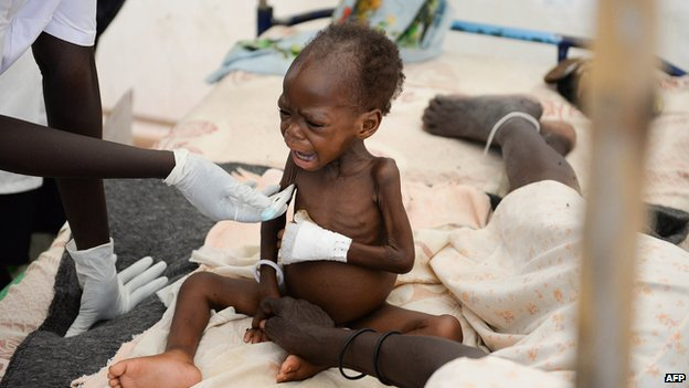 A 16-month-old South Sudanese boy, suffering from severe malnutrition, sits next to nurses outside a clinic of Medecins Sans Frontieres (MSF) on 30 May 2014 at the UN Mission in South Sudan (UNMISS) site in Malakal.