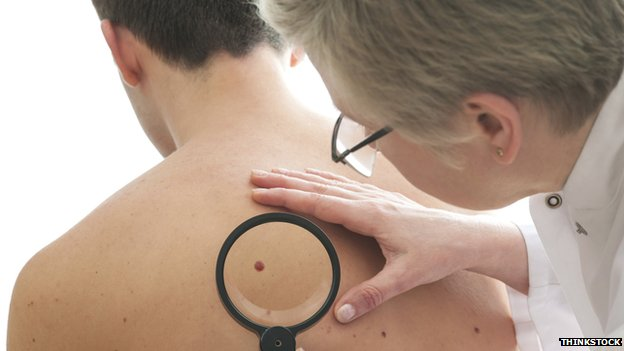 Doctor examining mole on patient