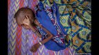 A malnourished CAR refugee child resting at the feeding centre in Batouri hospital in Cameroon.