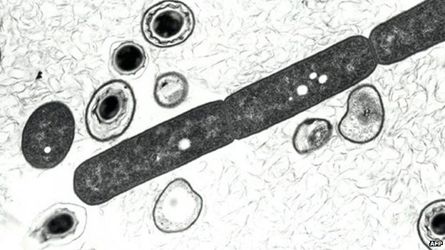 Anthrax bacterium, shown in a 2001 US defence department photo
