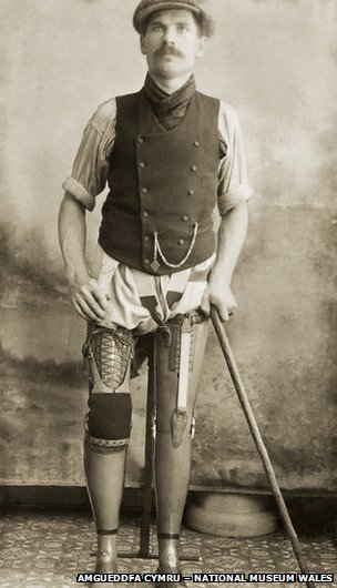 A coal miner with two prosthetic legs
