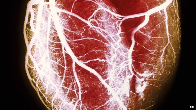 Heart attacks are caused by a blockage to the blood vessels that carry oxygen to the heart.