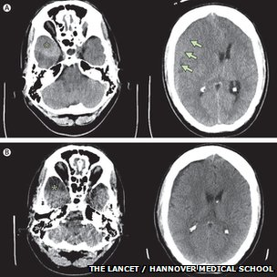 CT scans of the patient's brain